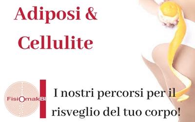 Adiposi e Cellulite